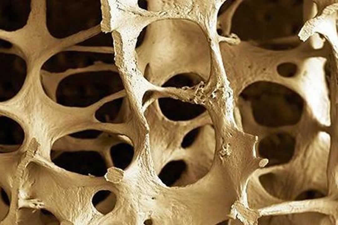 What Is The Best Way To Prevent Osteoporosis